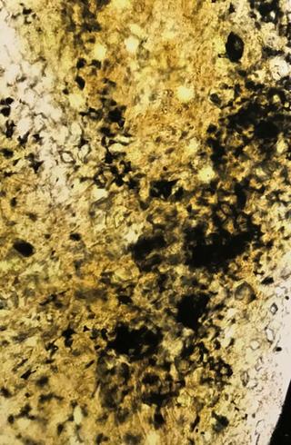 MICRO MACRO, Frammento di un'opera di Pipilotti Rist al microscopio, Photo © Microcollection